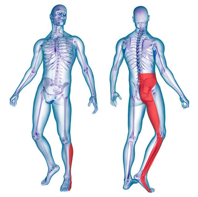 sciatica sciatalgia